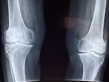 Everything You Need to Know About Your ACL Injury